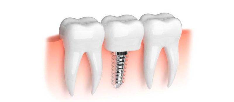 The Procedure Of Dental Implants